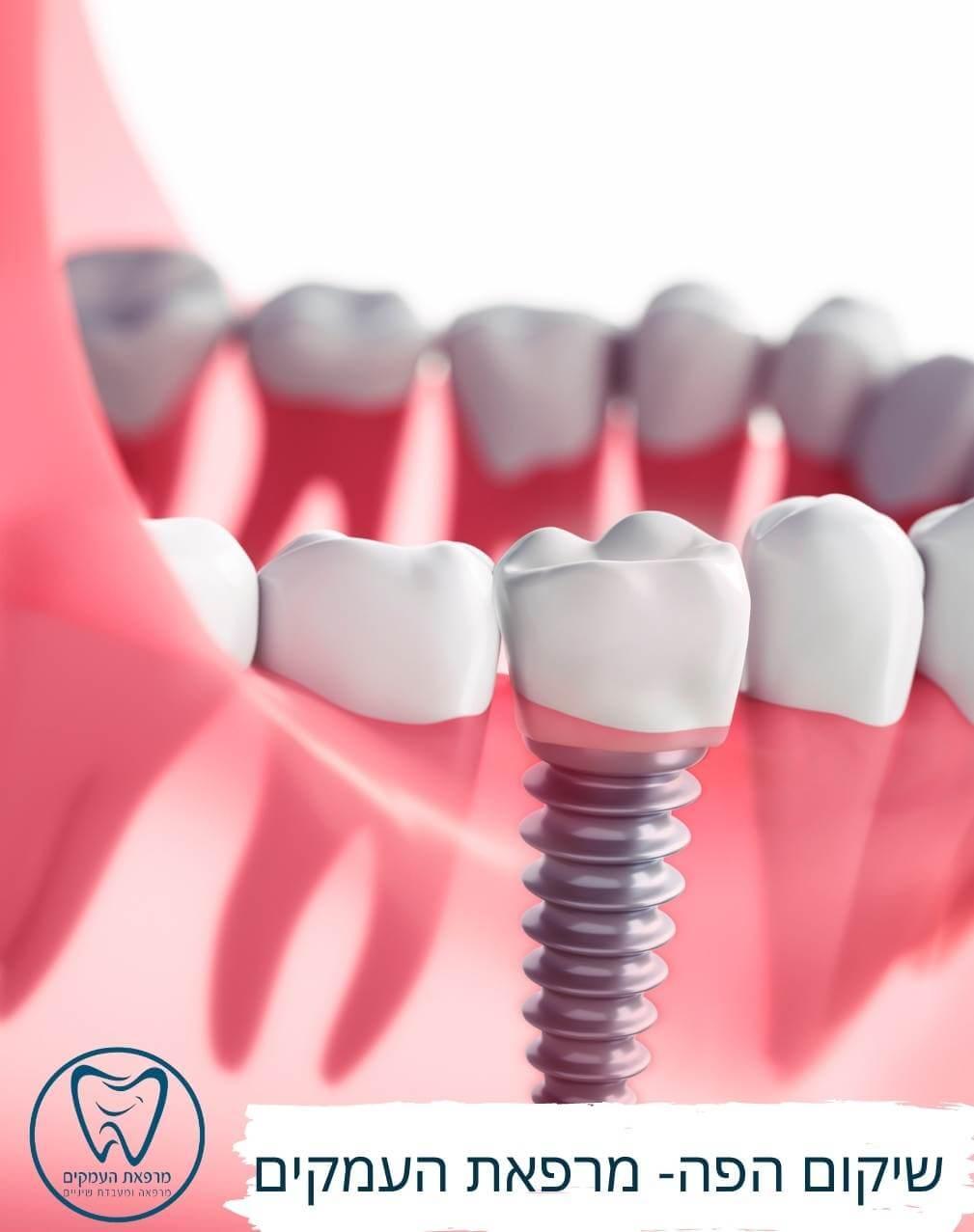 שתלים דנטליים להשתלות שיניים - מרפאת העמקים עפולה