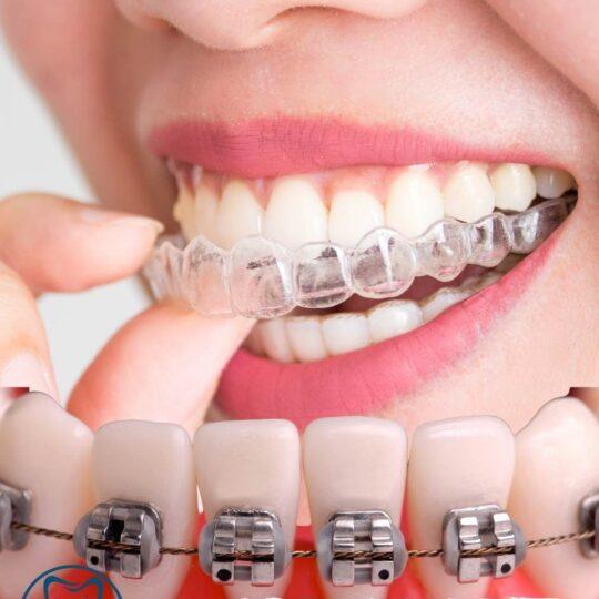 יישור שיניים שקוף ועם גשר רגיל - מרפאת העמקים עפולה