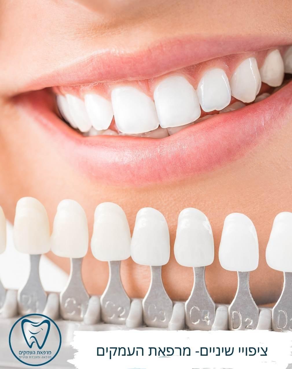 ציפויי שיניים במרפאת העמקים עפולה