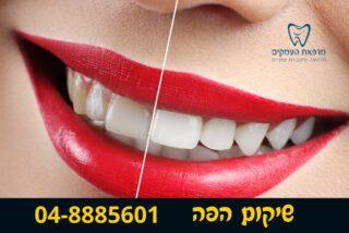 הלבנת שיניים -לפני ואחרי - מרפאת העמקים עפולה