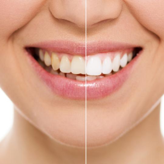 הלבנת שיניים מרפאת העמקים לפני ואחרי