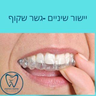 יישור שיניים שקוף אינויזליין