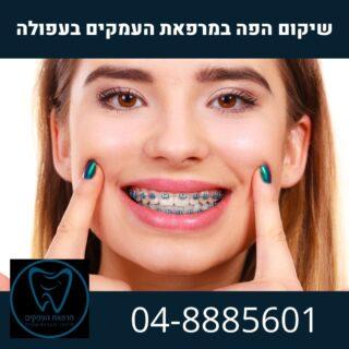יישור שיניים - במסגרת שיקום הפה