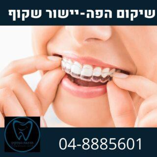 יישור שינייף שקוף אינויזליין